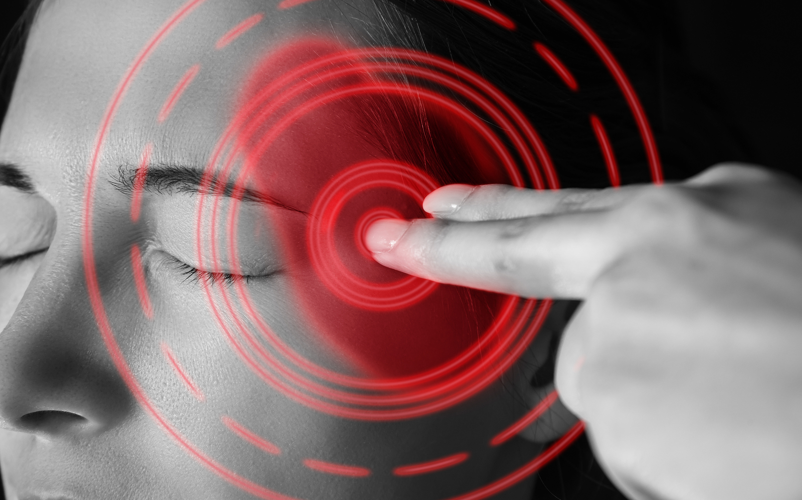 Alleviating migraine headaches in Calgary Alberta